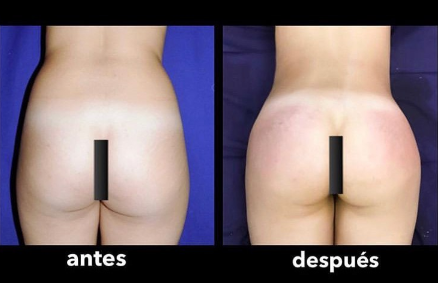 Butt augmentation with fat transfer