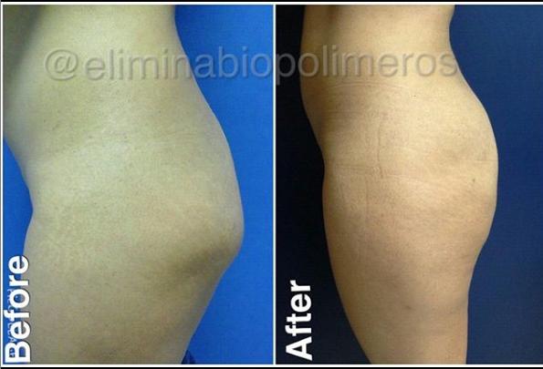 biopolimeros butt area