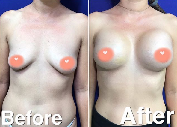 breast augmentation before after miami