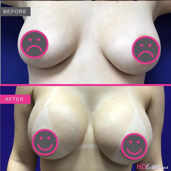 breast aumentation before after miami