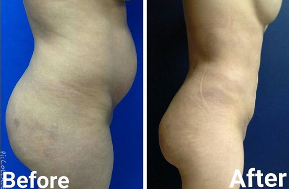 cool laser liposuction miami florida