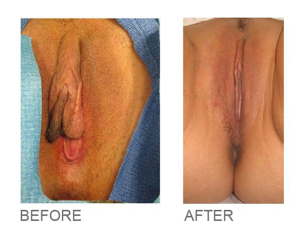 designer vaginoplasty miami florida 2