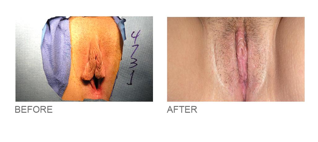 designer vaginoplasty miami florida 3