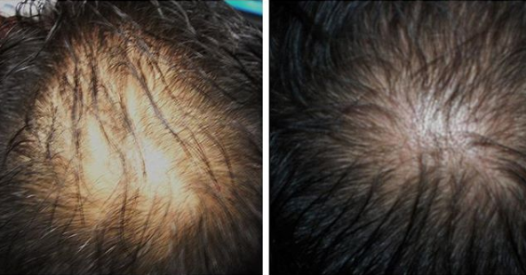 hair growth with prp treatment