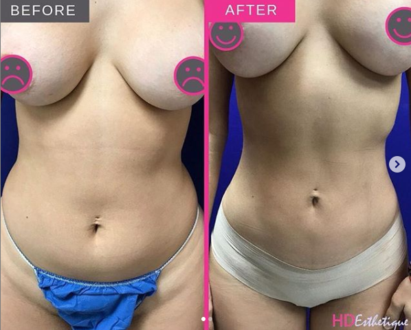 liposuction 360