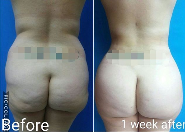 liposuction with fat transfer miami