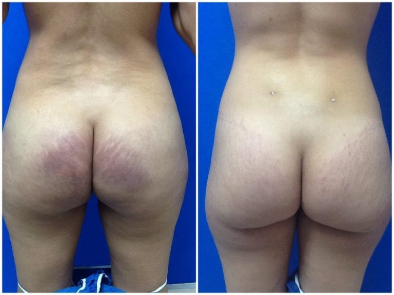 silicone injection removal butt miami florida