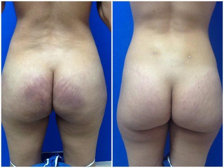 silicone injection removal butt miami florida